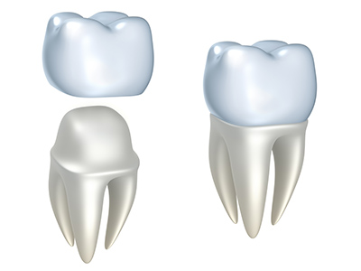 Dental Crowns at Medhat Dental Excellence and Artistic Smiles Family Dental Care
