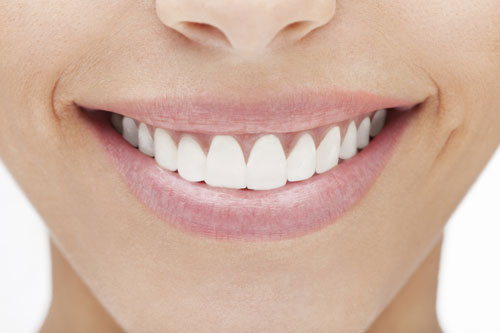 Veneers at Medhat Dental Excellence and Artistic Smiles Family Dental Care