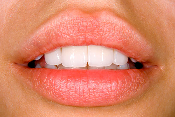 Close up of an attractive mouth with pearly white dental Veneers in Chicago, IL, offered by Medhat Dental Excellence